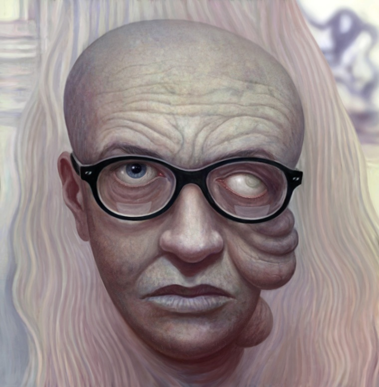 #25: Dr. Cataract
